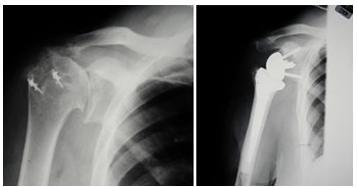 Sports Arthroscopy India Orthopaedic Surgeon India